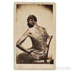 Carte-de-Visite of Enslaved Man with Whipping Scars, Escaped Slave Known as Gordon or Peter.